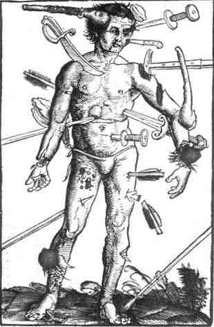 Injuries by medieval axes and swords